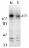 APP polyclonal antibody Western blot
