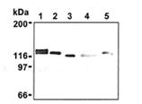 Drebrin monoclonal antibody (M2F6) Western blot