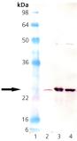 Mn SOD polyclonal antibody Western blot