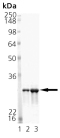 Mn SOD (mouse), (recombinant) (His-tag) SDS-PAGE