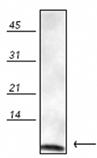 Ubiquitin polyclonal antibody Western blot