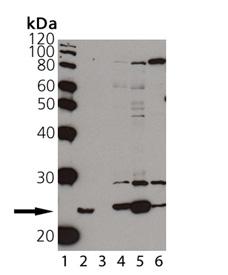[pSer59]αB-Crystallin polyclonal antibody Western blot