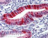 Metallothionein monoclonal antibody (UC1MT) Immunohistochemistry