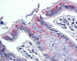 ERp57 polyclonal antibody Immunohistochemistry