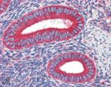 Calreticulin monoclonal antibody (FMC 75) Immunohistochemistry