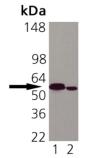 Calreticulin monoclonal antibody (FMC 75) Western blot