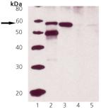 Calreticulin polyclonal antibody Western blot