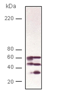 Calcineurin A polyclonal antibody Western blot