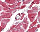HSP27 polyclonal antibody Immunohistochemistry