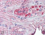 Grp94 polyclonal antibody Immunohistochemistry