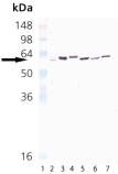 HSP65 (mycobacterial) monoclonal antibody (3F7) Western blot
