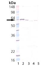 PDI polyclonal antibody Western blot