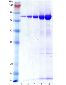 ERp72 (human), (recombinant) (His-tag) SDS-PAGE