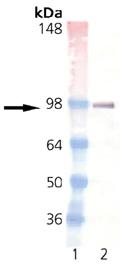 Estrogen receptor monoclonal antibody (h-151) Western blot
