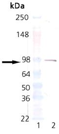 Estrogen receptor alpha monoclonal antibody (C-542) Western blot