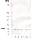 KDEL receptor monoclonal antibody (KR-10) Western blot