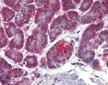 Membrin monoclonal antibody (4HAD6) Immunohistochemistry