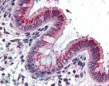 Synaptotagmin I polyclonal antibody Immunohistochemistry