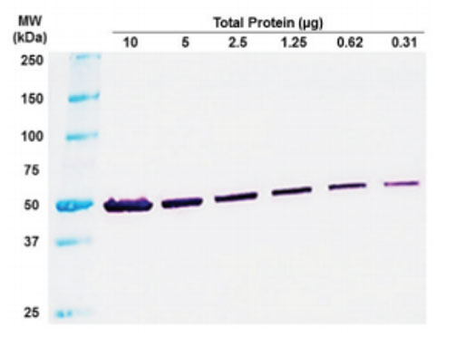 How do you Choose the Right Western Blot Detection Method? - Enzo