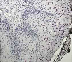 Hybridization of a digoxigenin-labeled HPV