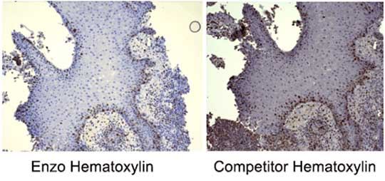 HIGHDEF® Hematoxylin Vs competitor Hematoxylin